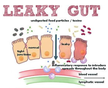 Leaky gut skin health connections. | makesauerkraut.com
